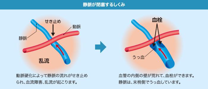 網膜静脈閉塞症のしくみ